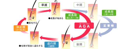 AGA 治療